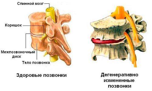 Дегенеративно-дистрофические изменения грудного отдела позвоночника (ДДЗП): причины, лечение