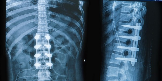 Перелом позвоночника: признаки, первая помощь, лечение и реабилитация после повреждения позвонков