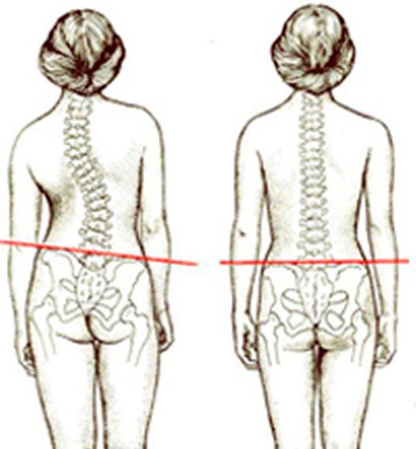 Сколиоз 2 степени: лечение в домашних условиях, симптомы, как лечить у подростков