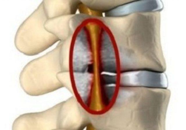 Корешковый синдром шейного отдела: симптомы и лечение