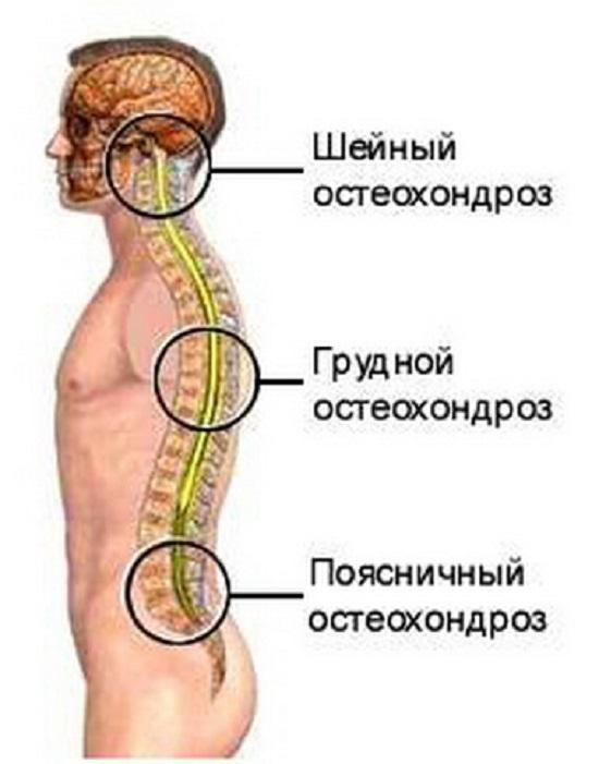 Остеохондроз поясничного отдела позвоночника: симптомы и лечение, что такое хондроз поясницы