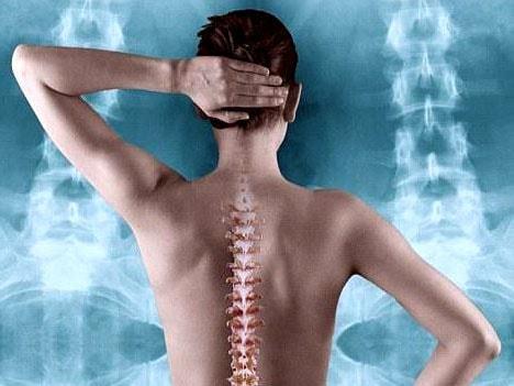Остеопороз у женщин: симптомы и лечение, первые признаки, как лечить, причины возникновения