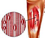 Миофасциальный болевой синдром пояснично-крестцового и шейного отдела позвоночника, лечение
