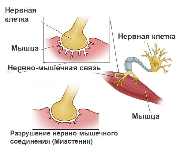 Миастения: симптомы и причины возникновения, что это такое, лечение, прогнозы при болезни