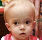Остеопетроз (мраморная болезнь) у детей: симптомы, лечение злокачественного смертельного мрамора костей