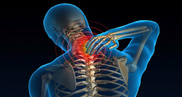 Искривление шейного отдела позвоночника: лечение сколиоза шеи, симптомы