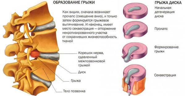 ЛФК при грыже пояснично-крестцового отдела позвоночника, упражнения для лечебной физкультуры, видео