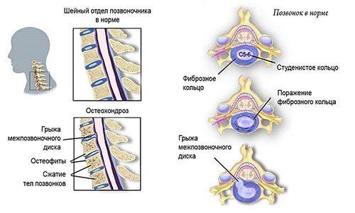 Нарушение статики позвоночника (шейного, поясничного отдела), причины нарушений статистической функции