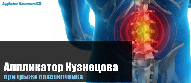 Аппликатор Кузнецова при грыже позвоночника (поясничного отдела)