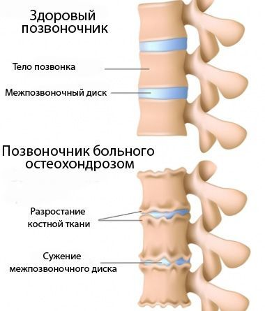 Йога при остеохондрозе шейного отдела позвоночника, поясничного и грудного, видео