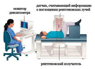 Денситометрия костей: что это за процедура, как проводится, расшифровка результатов исследования