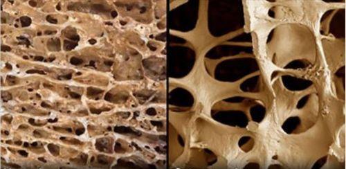 Анализ на остеопороз: как сдавать кровь, диагностика у женщин, денситометрия