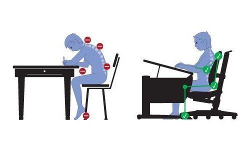 Кифоз позвоночника: лечение, как исправить в домашних условиях, что это такое