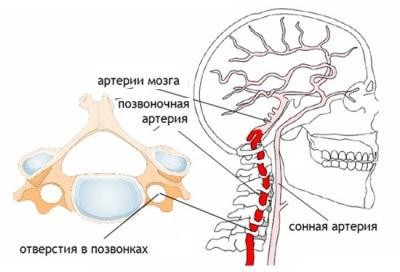 Стеноз позвоночных артерий шейного отдела лечение