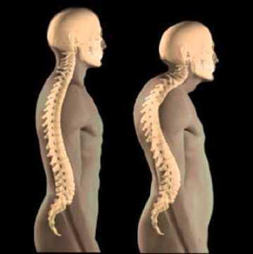Грыжа шейного отдела позвоночника: симптомы и лечение межпозвоночной грыжи, что делать, последствия