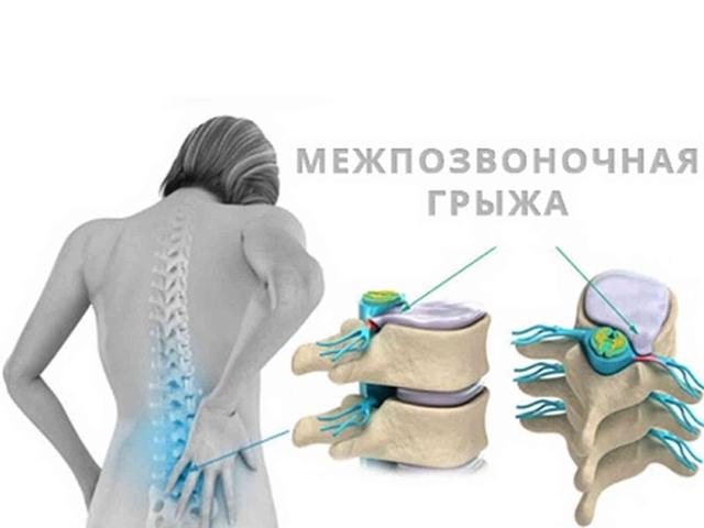 Болит спина при кашле: причины болей, почему отдает в области лопаток и поясницы