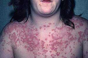 Системная красная волчанка: симптомы и лечение, прогноз для жизни, диагностика, причины заболевания