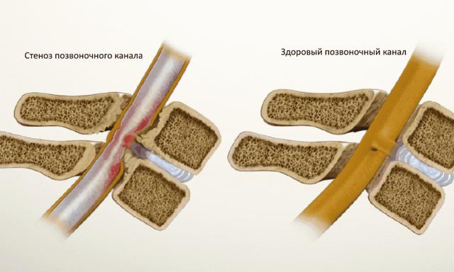 Может ли быть температура при остеохондрозе шейного отдела, причины при хондрозе