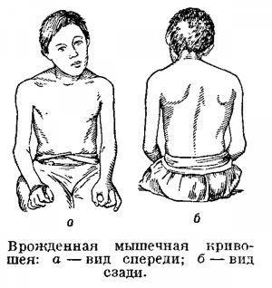 Кривошея у взрослых: лечение, причины, симптомы, лечебная гимнастика