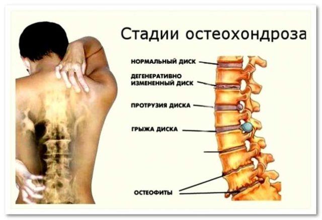 Упражнения Бутримова для шейного отдела позвоночника: гимнастика, спецкомплексы при остеохондрозе, видео