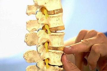 Пояснично-крестцовый отдел позвоночника: строение костей, подвижны ли позвонки или нет