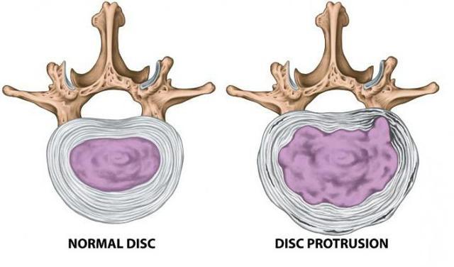 Протрузия межпозвоночных дисков шейного отдела позвоночника: симптомы и лечение, причины