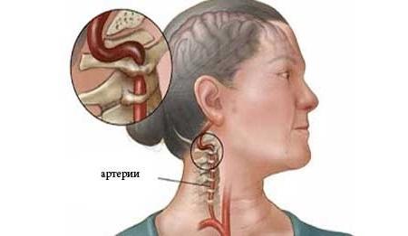 Защемление сосудов в шейном отделе: симптомы, лечение позвоночной артерии
