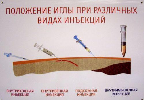 Обезболивающие при остеохондрозе в поясничном или шейном отделе позвоночника, виды препаратов