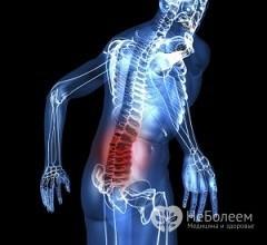 Киста позвоночника в пояснично-крестцовом отделе: причины возникновения, лечение, последствия после операции