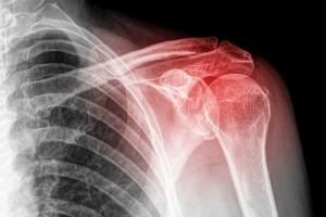 Боль в ключице, переходящая в шею, что делать, если болит справа или слева