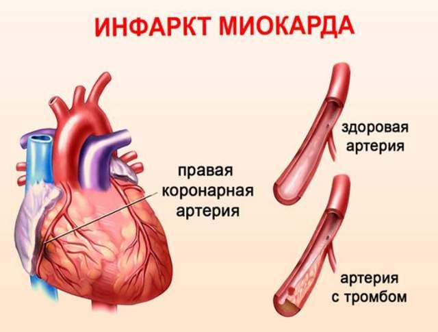 Защемление нерва в грудном отделе позвоночника: симптомы, лечение