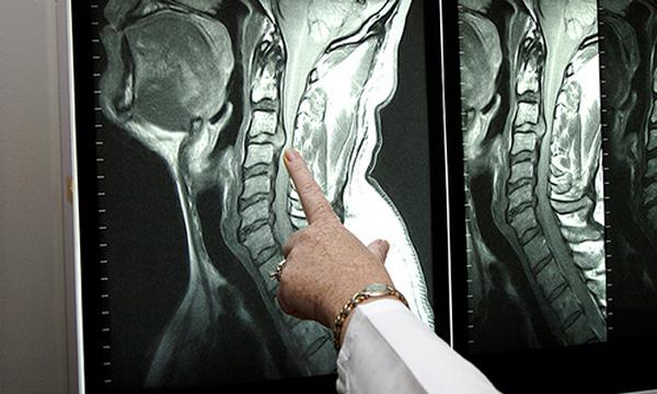 КТ шейного отдела позвоночника: что показывает, как проводится компьютерная томография