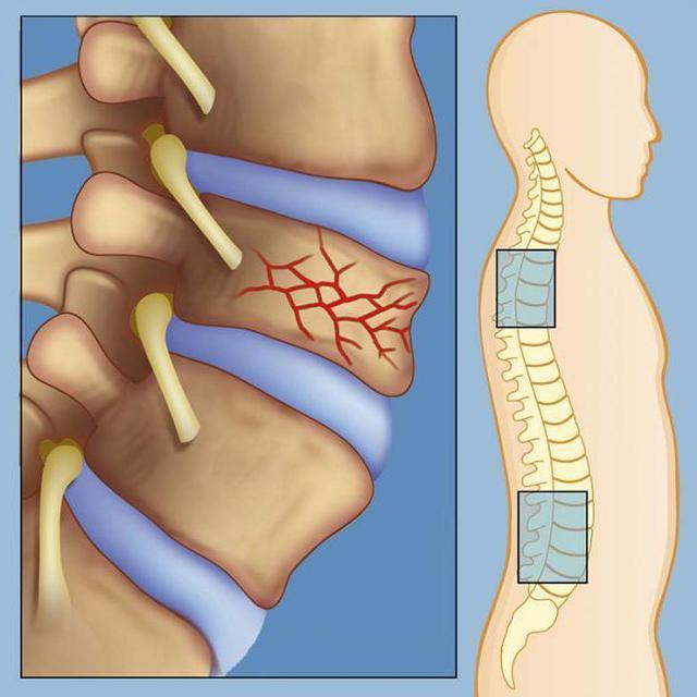 Гемангиома позвоночника: что это такое, лечение, опасные размеры, симптомы и последствия