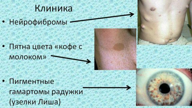 Нейрофиброматоз (болезнь Реклингхаузена) 1, 2 типа у детей и взрослых: симптомы, лечение