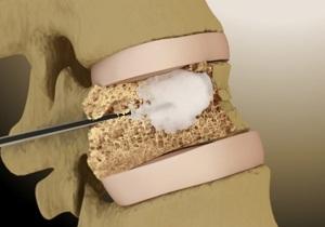 Вертебропластика: насколько эффективная операция в лечении позвоночника