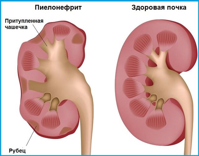 Боль в пояснице справа сзади у женщин, причины почему тянет правый бок