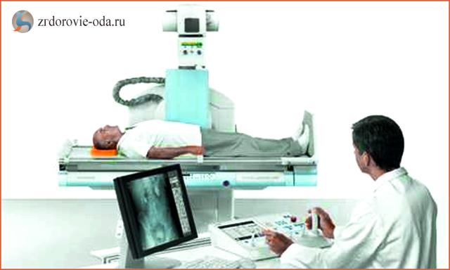 Рентген позвоночника пояснично-крестцового отдела: что показывает, как делают рентгенографию