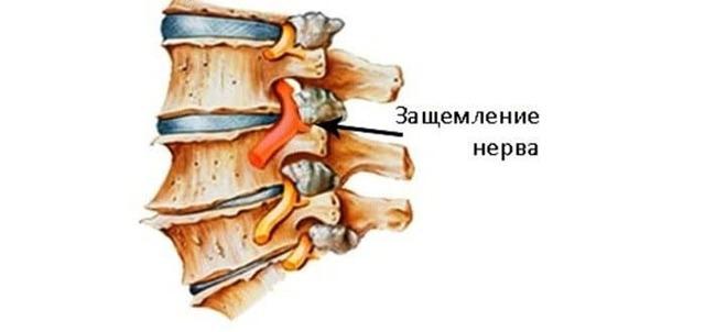 Защемления нерва в шейном отделе: симптомы, лечение воспаления в домашних условиях