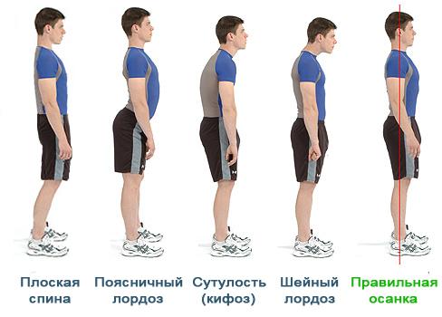 Физиологические изгибы позвоночника: сколько изгибов позвоночного столба у человека, строение