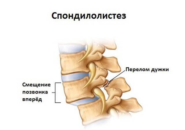 Спондилолистез пояснично-крестцового отдела позвоночника: лечение, причины, симптомы