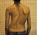 Деформация позвоночника: причины, симптомы, диагностика и лечение