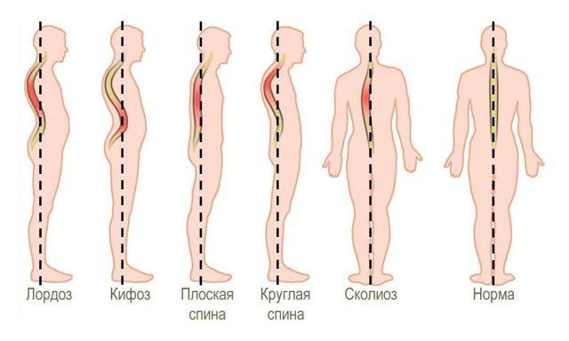 Лордоз и кифоз позвоночника: что это такое, причины, симптомы, лечение