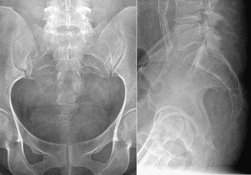 Рентген копчика: как делают, подготовка, методика выполнения