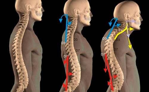 Кифоз шейного отдела позвоночника: лечение кифотической деформации шеи, что это такое