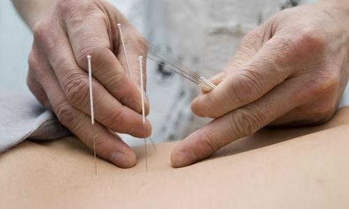 Иглоукалывание при грыже поясничного отдела позвоночника: отзывы, помогает ли иглотерапия