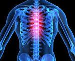 Грудной радикулит: симптомы и лечение грудного отдела, причины