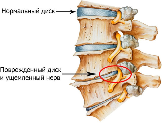 Лечение позвоночника: список названий заболеваний спины, симптомы и лечение болезней, классификация