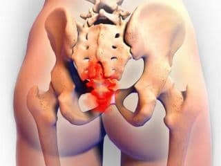 Киста копчика: симптомы и лечение у мужчин, как лечить без операции в домашних условиях