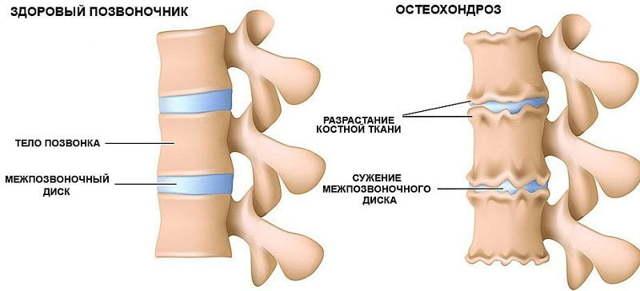 Межпозвонковый остеохондроз дисков позвоночника: причины, симптомы, лечение