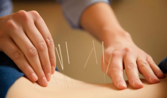 Защемление нерва в спине: что делать, если защемило, симптомы, как лечить